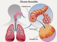 Jenis Pada Penyakit Bronkitis